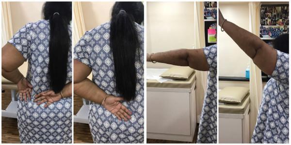 Dr. Masooma Ladiwala PT treatment 2
